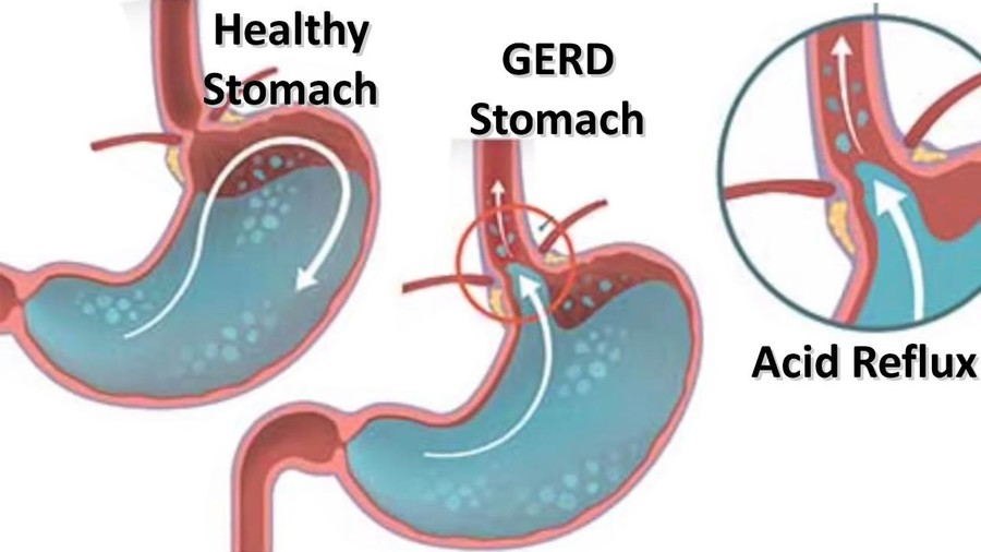 Healthy stomach, GERD Stomach, Acid Reflux