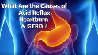 What are the causes of acid reflux, heartburn, and GERD?