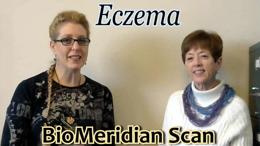 Eczema and the results of a BioMeridian Scan
